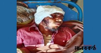 কলাপাড়ায় যুবকের কান কেটে পালালো সন্ত্রাসীরা
